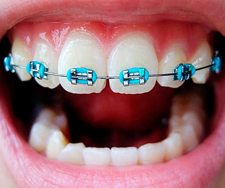 أسعار تقويم الأسنان 2021 أسعار لايف