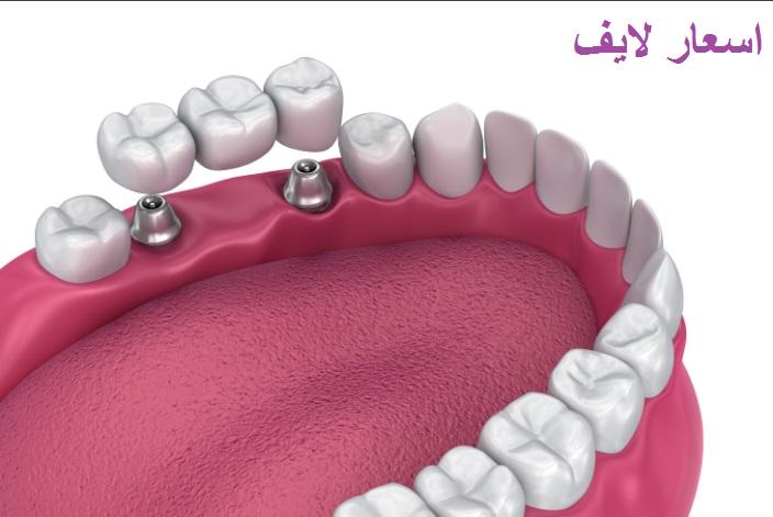 تكلفة زراعة الأسنان في مصر أسعار لايف